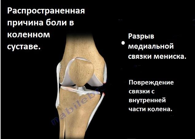 боли в коленном суставе что делать